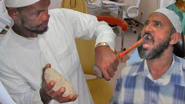 Изображение стоматолога с зубилом